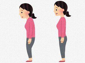 全女性の悩み「猫背」